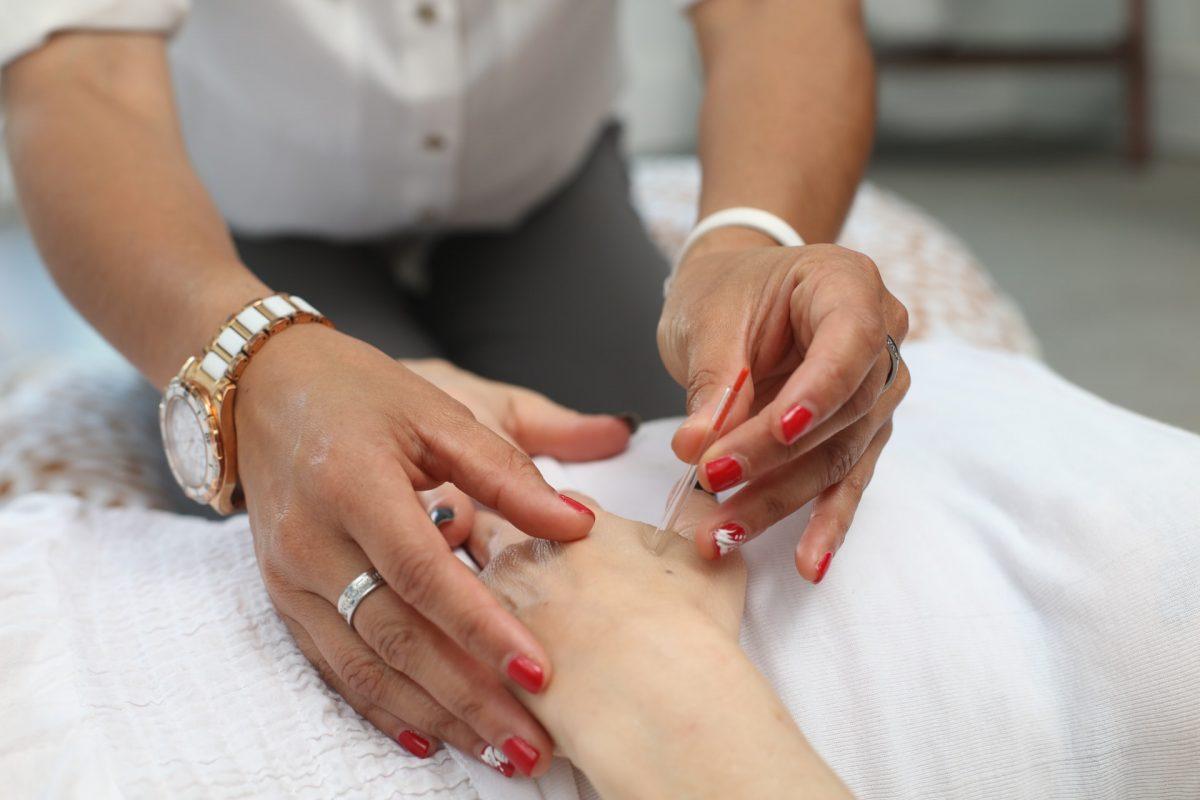 Akupunktur in Tobiar